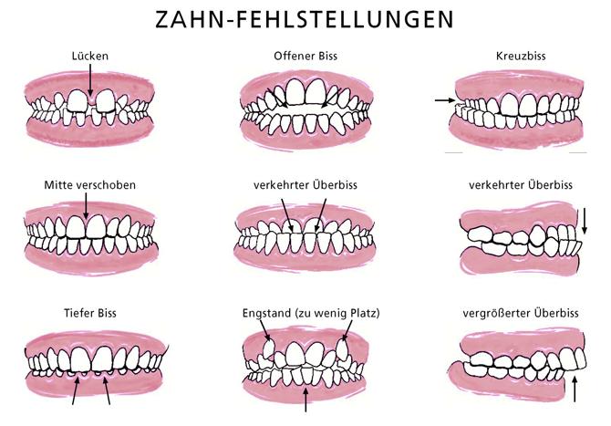 Zahnfehlstellungen - Copyright VÖK