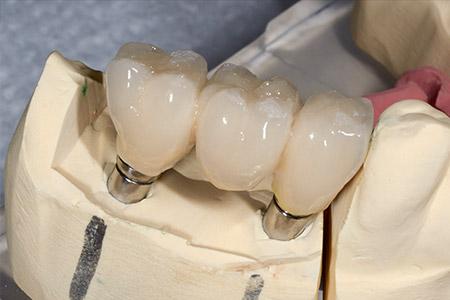 Festsitzender Zahnersatz