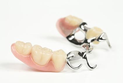 Klammerprothese, Zahnersatz